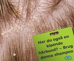 psoriasis i hovedbunden shampoo